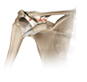 acromioclavicular dislocation