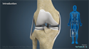 Multi-ligament Knee Reconstruction